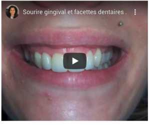 Sourire gingival - Facette dentaire